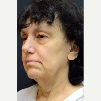 55-64 year old woman treated with Neck Lift before 3776507