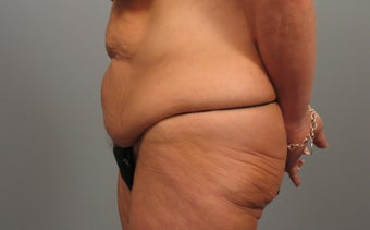 45-54 year old woman treated with Tummy Tuck before 1946844