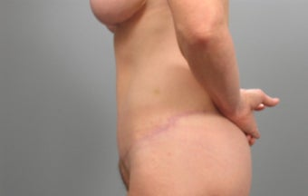 45-54 year old woman treated with Tummy Tuck after 1946844