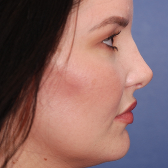 25-34 year old woman treated with Rhinoplasty after 3624098