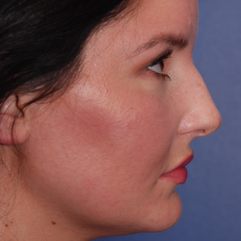 25-34 year old woman treated with Rhinoplasty before 3624098