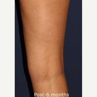 35-44 year old woman treated with Sclerotherapy after 2920968