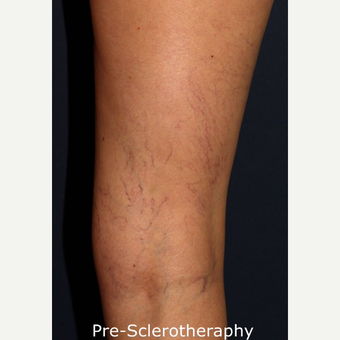 35-44 year old woman treated with Sclerotherapy before 2920968