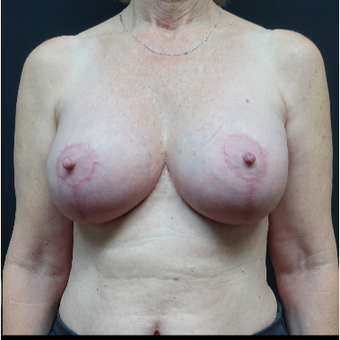 35-44 year old woman treated with Mentor Breast Implants after 3731606