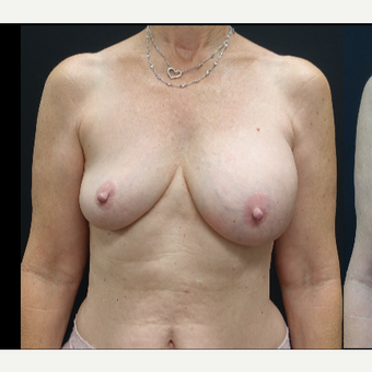 35-44 year old woman treated with Mentor Breast Implants before 3731606