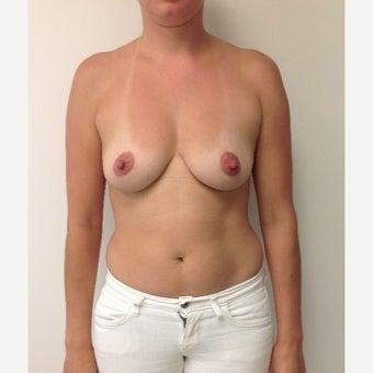 Breast Augmentation before 1679279