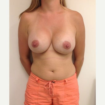 Breast Augmentation after 1679279
