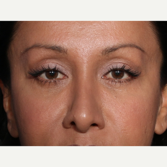 45-54 year old woman treated with Eyelid Surgery (view 1 of 2) after 3104752