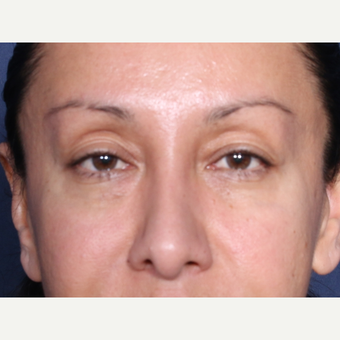 45-54 year old woman treated with Eyelid Surgery (view 1 of 2) before 3104752