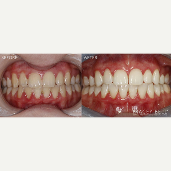 35-44 year old woman treated with Teeth Whitening before 3541708