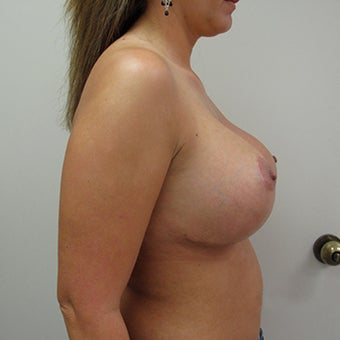 25-34 year old man treated with Breast Augmentation 1829835