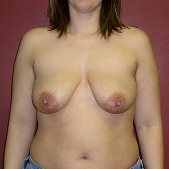 25-34 year old man treated with Breast Augmentation before 1829835