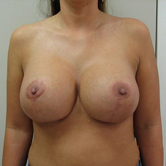 25-34 year old man treated with Breast Augmentation
