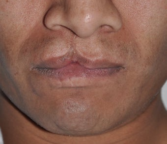 32 Year Old Male Treated For A Cleft Lip before 972740