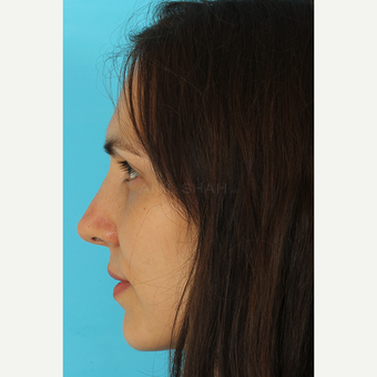 25-34 year old woman treated with Revision Rhinoplasty after 3630153
