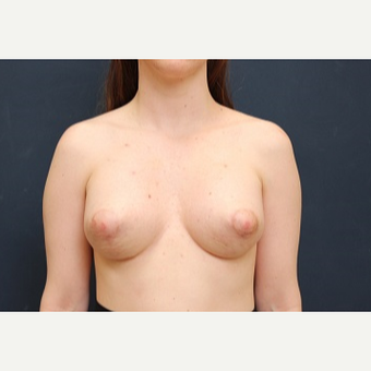 18-24 year old woman treated with Breast Lift with Implants after 3344178