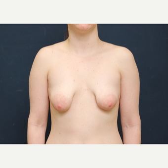 18-24 year old woman treated with Breast Lift with Implants before 3344178
