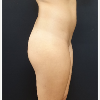 25-34 year old woman treated with Butt Augmentation using 548cc Silicone Implants before 3033242