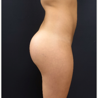 25-34 year old woman treated with Butt Augmentation using 548cc Silicone Implants after 3033242