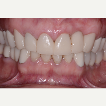 35-44 year old woman treated with Dental Implants after 3104335