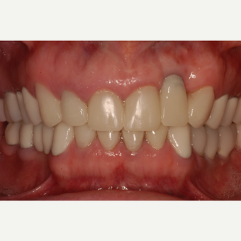35-44 year old woman treated with Dental Implants before 3104335