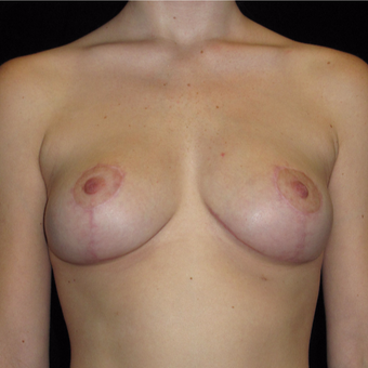 20 year old woman treated with Breast Lift after 3123435
