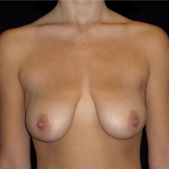 20 year old woman treated with Breast Lift before 3123435