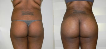 Body Sculpting with a Brazilian Butt Lift before 945822