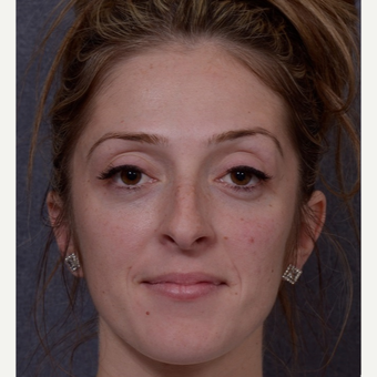 25-34 year old woman treated with Rhinoplasty before 3844470