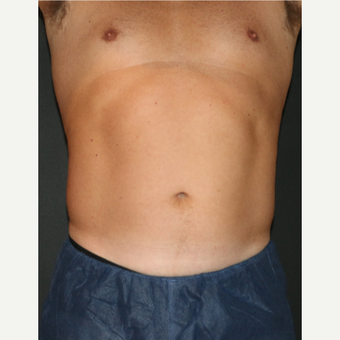 35-44 year old man treated with CoolSculpting after 3181832