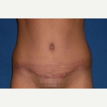 35-44 year old woman treated with Tummy Tuck after 3009791