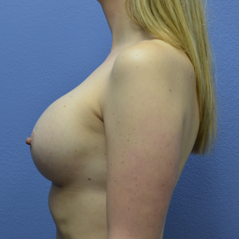 35-44 year old woman treated with Breast Augmentation after 3085368