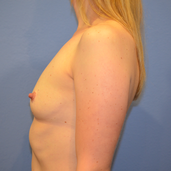 35-44 year old woman treated with Breast Augmentation before 3085368