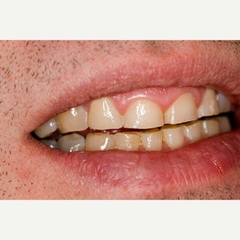 45-54 year old man treated with Smile Makeover before 1559570