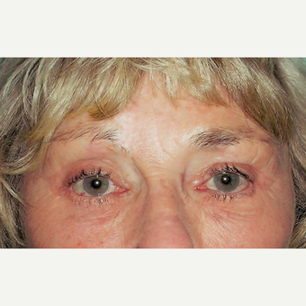 Eyelid Surgery (Blepharoplasty) after 3831648