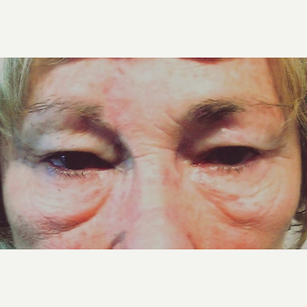 Eyelid Surgery (Blepharoplasty) before 3831648