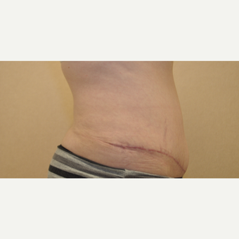 35-44 year old woman treated with Tummy Tuck after 3102854