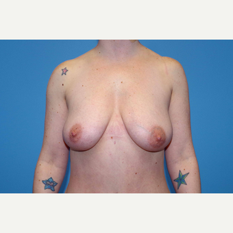 25-34 year old woman treated with Breast Augmentation before 3280658