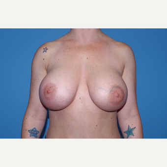 25-34 year old woman treated with Breast Augmentation after 3280658