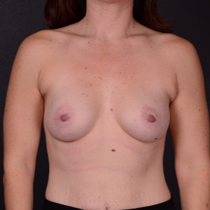 25-34 year old woman treated with Breast Augmentation after 3737497