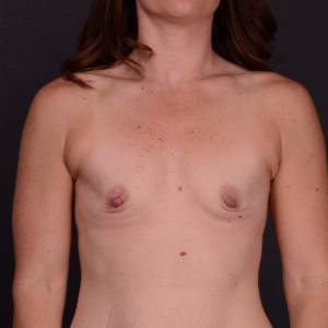 25-34 year old woman treated with Breast Augmentation before 3737497