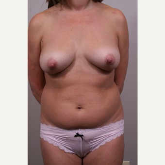 35-44 year old woman treated with Mommy Makeover before 3769632