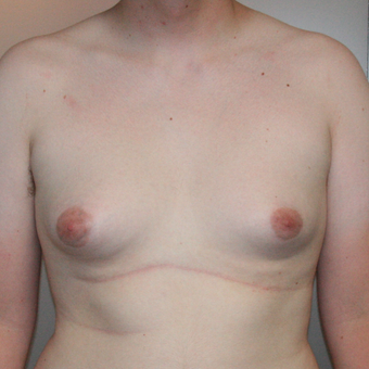 18-24 year old man treated with Male Breast Reduction before 3488090