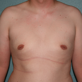 18-24 year old man treated with Male Breast Reduction after 3488090