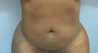 25-34 year old woman treated with Liposuction after 2323548