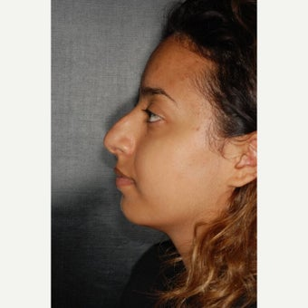 18-24 year old woman treated with Septoplasty before 2242916