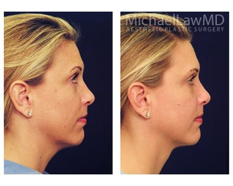 Chin Liposuction before 1256357
