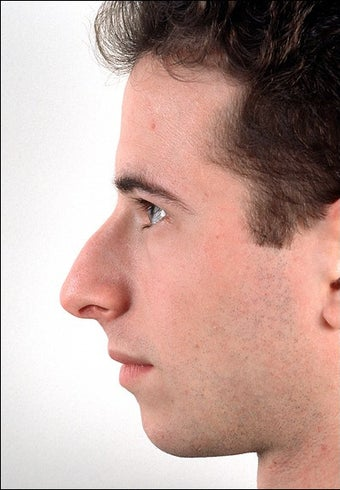 Rhinoplasty and Chin Implant