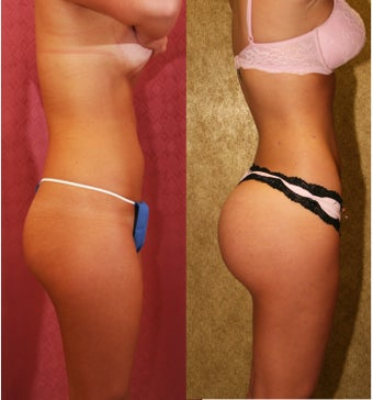 liposuction of abdomen after 993797