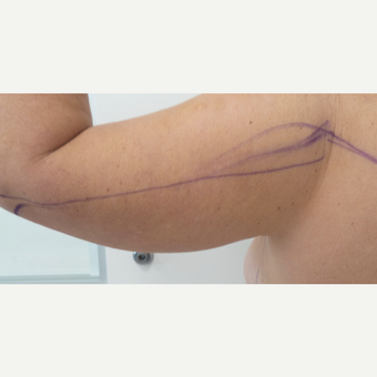 35-44 year old woman treated with Laser Liposuction before 3002028